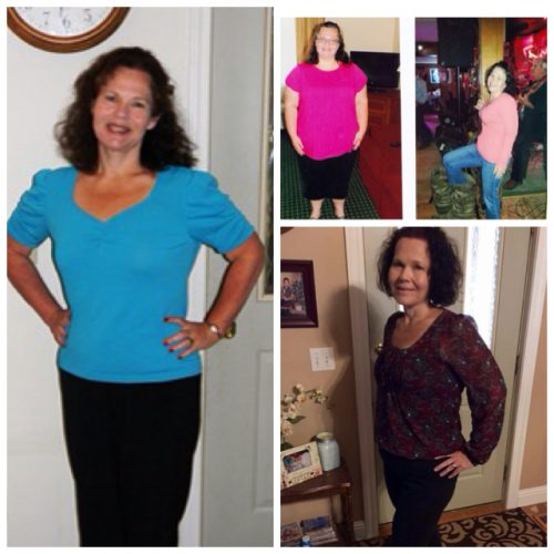 Lesa Brune Before & After Mini-Gastric Bypass