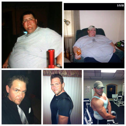 Ryan Atchison Before & After Mini-Gastric Bypass