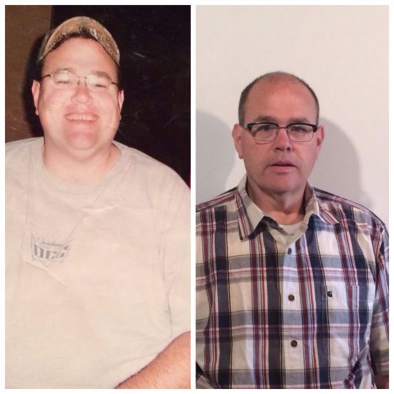 Steve Pelak Before & After Mini-Gastric Bypass