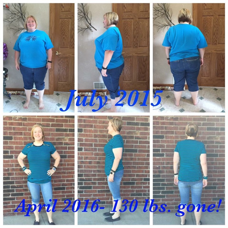 Michelle Plate Mini-Gastric Bypass Dr. David Hargroder